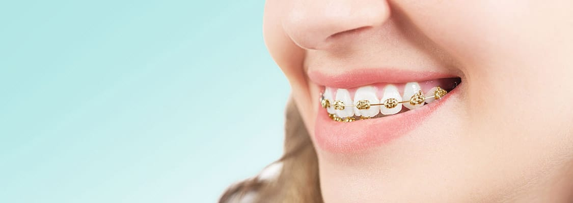 Get gold braces for the cost of silver in Parkersburg or Ripley WV