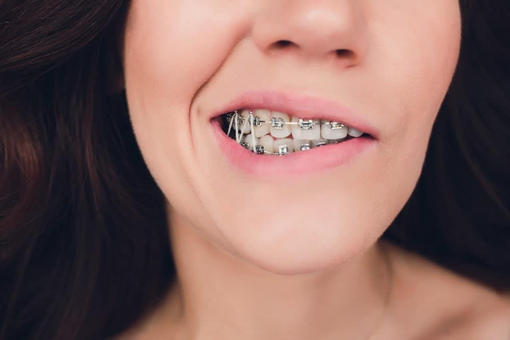 rubber bands on braces, what do they do?